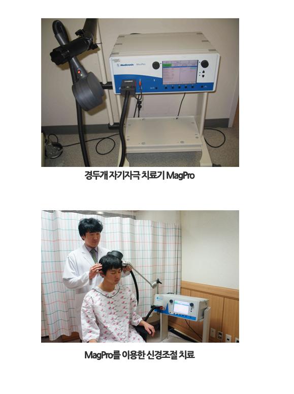 경두개 자기자극 치료기 MagPro, MagPro를 이용한 신경조절 치료
